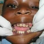 Infant Oral Mutiliation